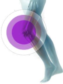 Artrita degenerativa - Osteoartrita